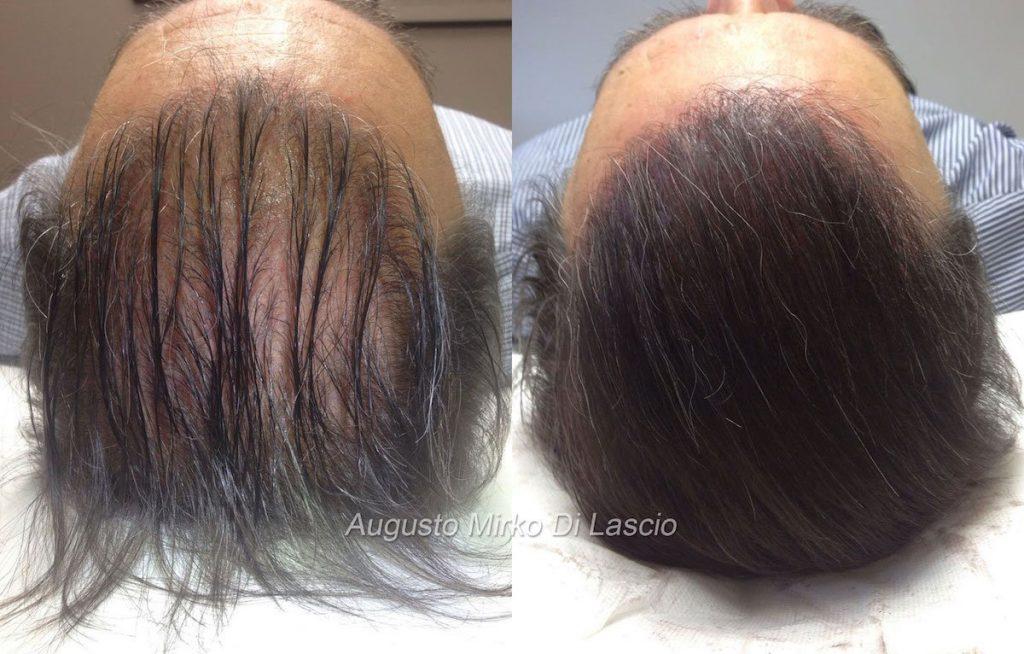 trattamento tricopigmentazione effetto densità