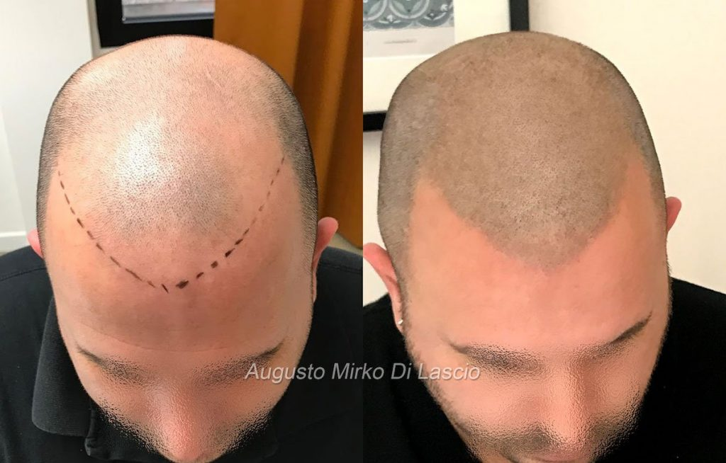 tricopigmentazione hairline