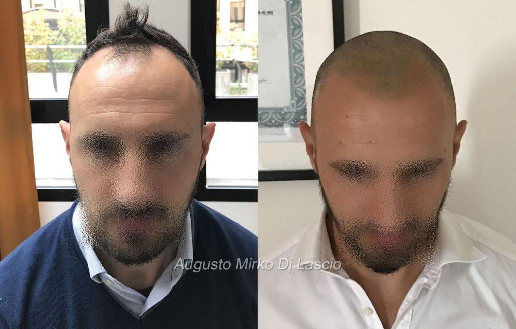 tricopigmentazione frontale