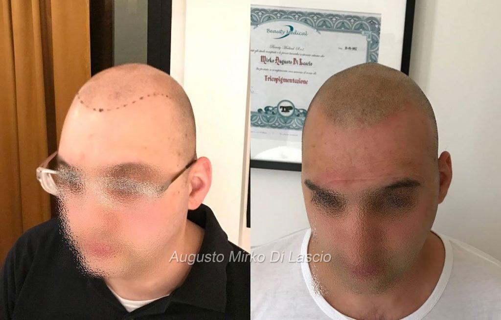 trattamento tricopigmentazione effetto rasato